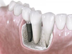 Model of an Astra Dental Implant in place alongside normal teeth.