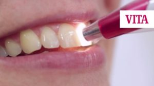 Dental Colour Matching with Vita EasyShade - latest technology
