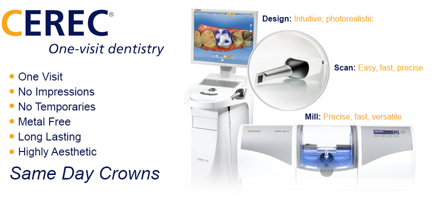 CEREC One Visit Dentistry - beautiful restorations - same day crowns