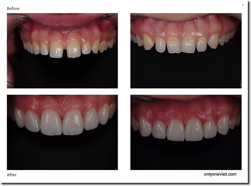 CEREC Veneers, Crowns, Bridges, inlays - Ceramic Restorations.Before and After Examples. Call us on 01628 474044 for an appointment.