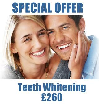 Latestl Teeth Whitening Special Offer at Bridge Dental in Marlow