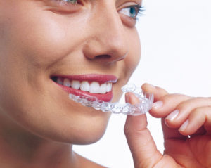 Better than other Teeth straightening Braces